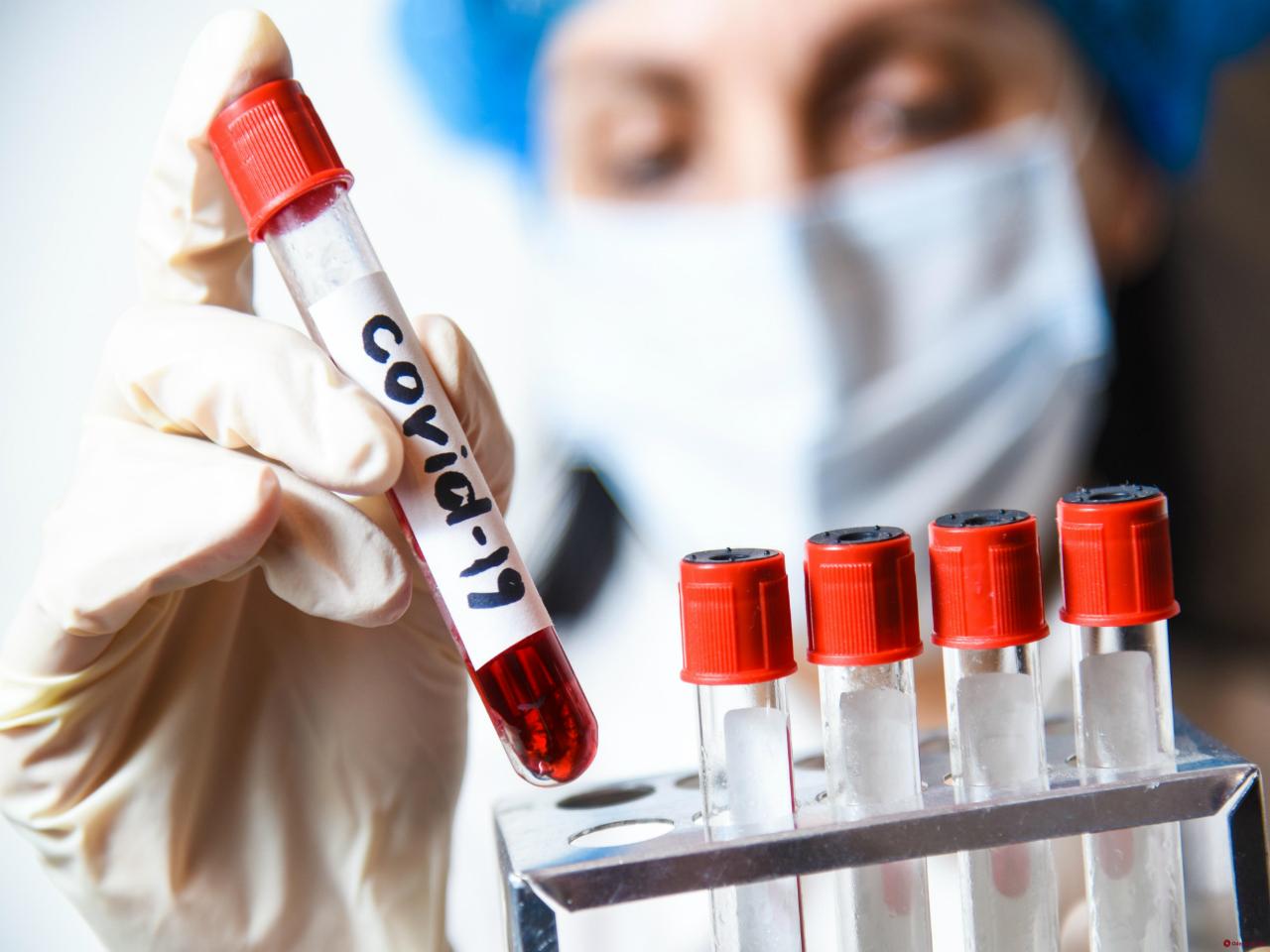 Тест на коронавирус после возвращения из-за границы